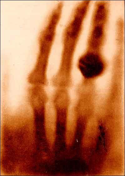 eerste x-ray