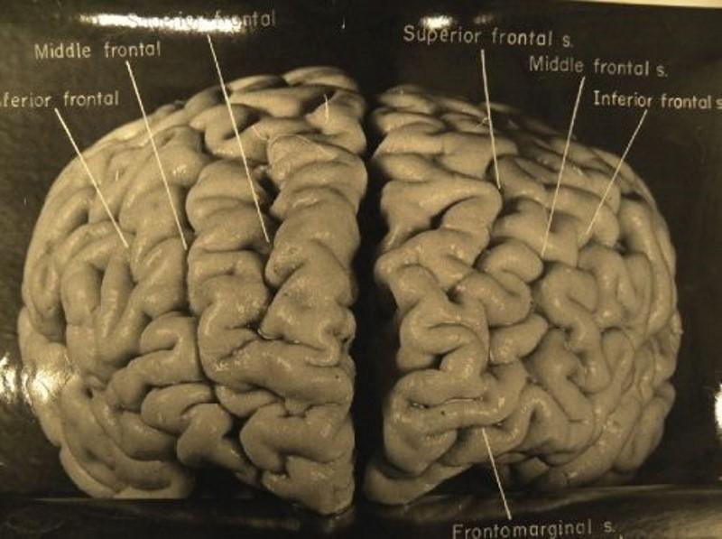 einstein hersenen
