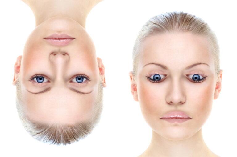 gezichtsblindheid