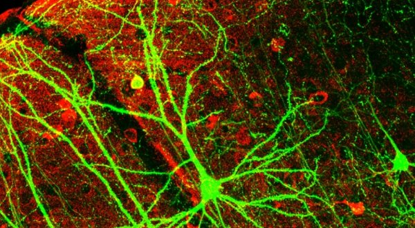 hersencellen