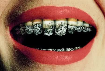 rokers tanden